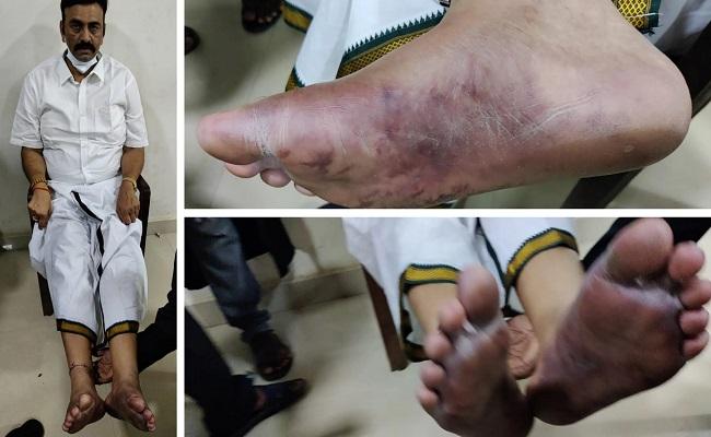I Was Beaten Up, Raghurama Krishnam Raju